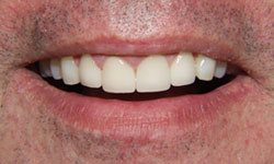 Closeup of teeth after crowns are placed
