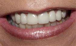 Closeup of flawless smile with resin bonding and porcelain crowns