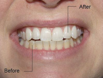 Closeup of discolored smile before teeth whitening and bright white smile after
