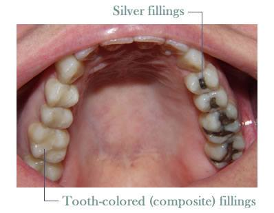 Inside of smile half with tooth-colored fillings half with silver fillings