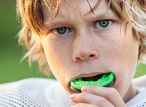 Teen boy placing sports mouthguards